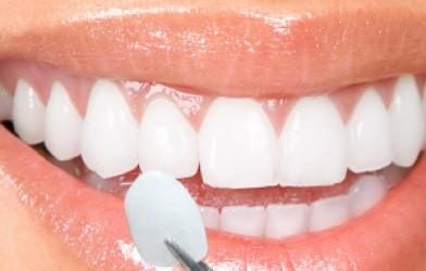 Lamina diş kaplama nedir, Lamina kaplama nasıl yapılır, lamina kaplama fiyatları ve lamina yaptıranların yorumları