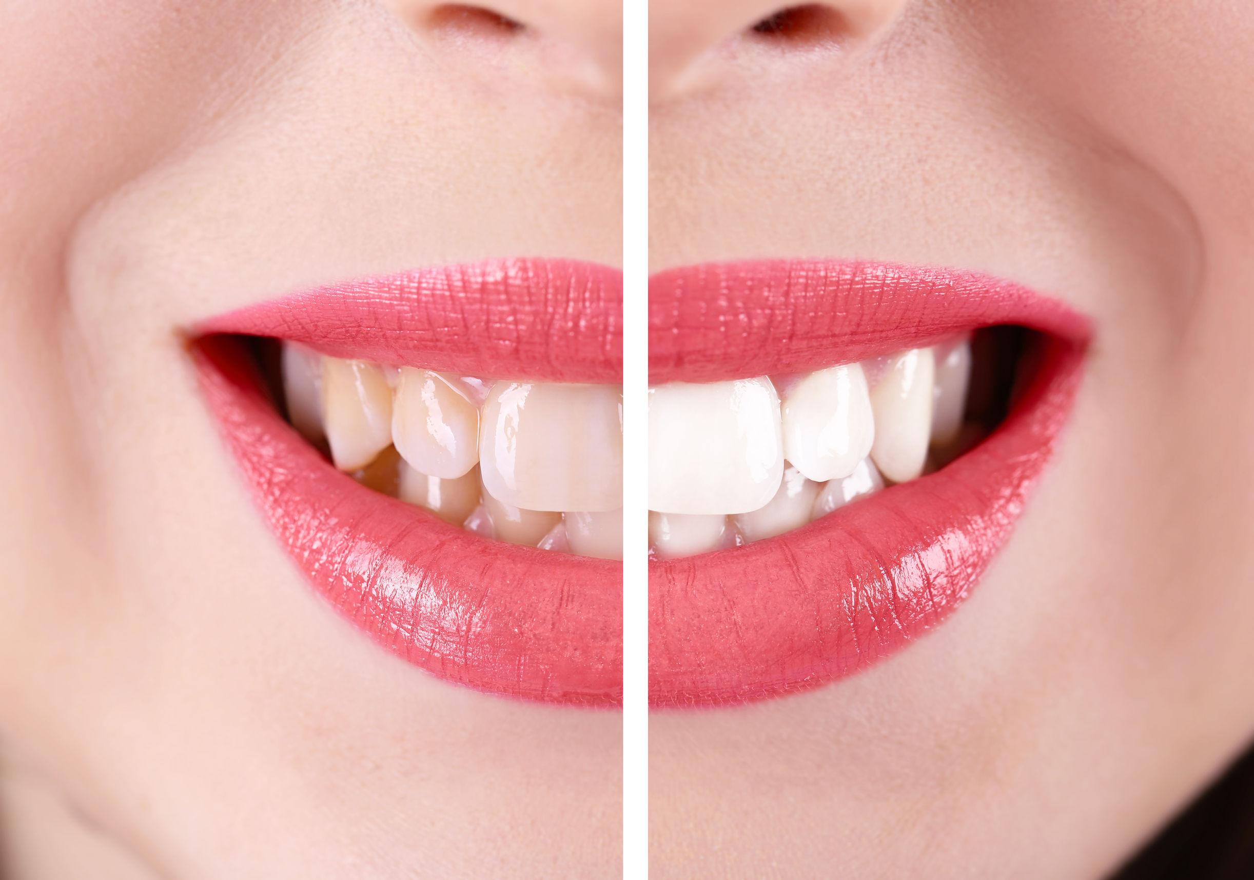 ZİRKONYUM nedir, zirkonyum kaplama diş fiyatları